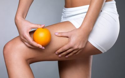 Co to jest cellulit i jak się go pozbyć?