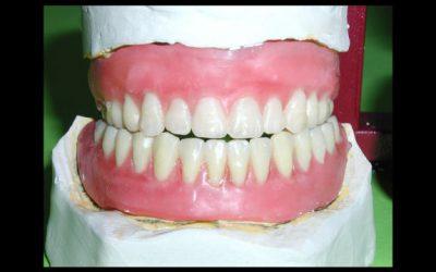 Tomografia stomatologiczna- kiedy wykonać?